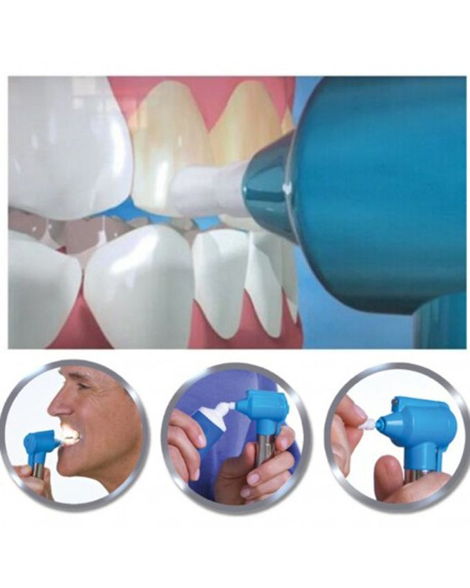 As Seen On TV Pack Kit de blanchiment dentaire